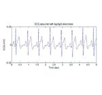 Bild 1: EKG-Signal mit nasser Elektrode