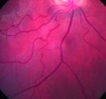 Kommt da ein Glaukom?