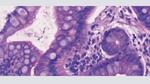 Automatisierte Pathologie