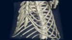 Ein neuer Blick in die Lunge