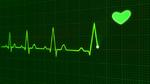 Elektrische Kardioversion (cardioversion)
