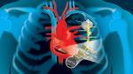 Herz lädt Herzschrittmacher nach