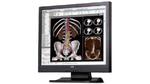 Mehr Durchblick in der Radiologie