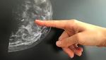 Smarter BH erkennt Brustkrebs