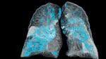 Smarter Assistent für die Radiologie zugelassen
