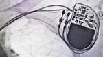 Welche Geräte beeinflussen Herzschrittmacher?
