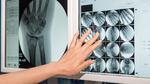 Sichere Diagnose mit Optical Bonding