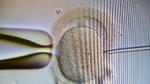 KI hilft bei künstlicher Befruchtung