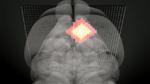 Forscher entwickeln neue MRT-Methode