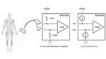 Bild 1. Zur Messung der Kontaktimpedanz in einem EKG-Gerät können Widerstände (Bild 1a) oder Stromquellen (Bild 1b) eingesetzt werden, um den Messstrom einzuspeisen.
