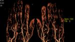 Angiografie (»Gefäßdarstellung«)