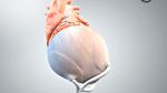 Künstliches Herzbeutel-Gewebe aus dem 3D-Drucker