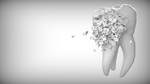 Stützpfeiler für die Zahnkrone