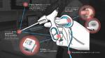 Wie Technisches Design die Chirurgie verbessert