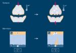 Bei memristiven Elemente lässt sich die Stärke der elektrischen Übertragung analog verändern, indem eine Spannung angelegt wird. In sogenannten Elektrochemischen Metallisiserungszellen (ECM) bildet sich zwischen den beiden äußeren metallischen Schich