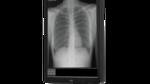 Display für Röntgen- und Mammografiediagnostik
