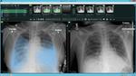 REiLI identifiziert verschiedene Befunde interstitieller Lungenentzündung, die auf CT-Bildern erscheinen, und berechnet deren Verteilung und Volumen.