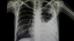Studentin entwickelt Röntgen-Software für COVID-19-Diagnose