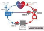 Schematische Darstellung des kardiopulmonalen Bypasses und der Applikation von Flow-Bubble Sensoren der Produktreihe Sonoflow CO.56 Pro