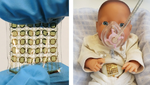 Schonende Atemunterstützung von Frühgeborenen