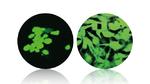 Evonik bringt neues PEEK-Biomaterial auf den Markt