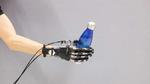 Exoskelett mit Bauteilen aus dem 3D-Drucker