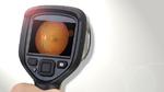 Künstliche Intelligenz optimiert die Augenheilkunde