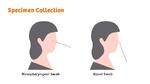 Coronatest ohne Nasen-Rachen-Abstrich