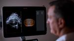 3D-Ultraschall des abdominalen Aortenaneurysmas