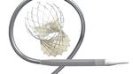Medtronic erhält CE-Zeichen für Evolut Pro+