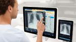 Röntgen mit KI-Unterstützung