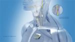 Neurostimulatoren für die gezielte Behandlung