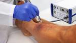 Wird die Plasmatherapie zur Kassenleistung?