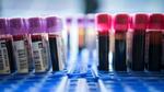 Wie gut sind die neuen Bluttests?