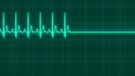 Multiples Organversagen